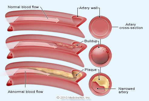 Coronary Artery Heart Disease Symptoms Treatment | Diseases