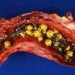 Gall Bladder Function And Diseases
