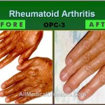 Arthritic Fingers