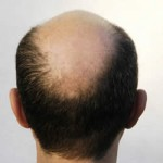 Baldness Remedies