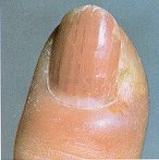 Nail Diseases and Disorders
