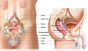 Inflamed Prostate
