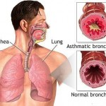 Bronchial Infection