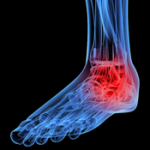 Heel Pain in Foot