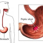 Bleeding Ulcer Causes
